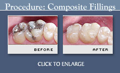 Tooth-colored Fillings - Before and After Photos