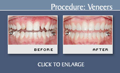 Dental Veneers Before and After Photos - Case 7
