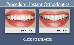 Instant Orthodontics Before and After Photos