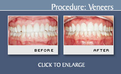 Before and After Photos Porcelain Veneers - Case 2