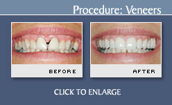Case 3 - Porcelain Veneers Before and After Photos