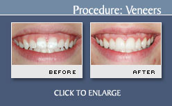 Porcelain Veneers Before and After Photos - Case 1