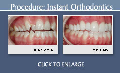 Instant Orthodontics Before and After Photo - Case 1