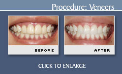 Case 4 - Before and After Photos Porcelain Veneers