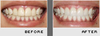 Porcelain Veneers - Case 3 - Before and After Photos