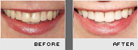 Tooth Whitening Before and After Photos